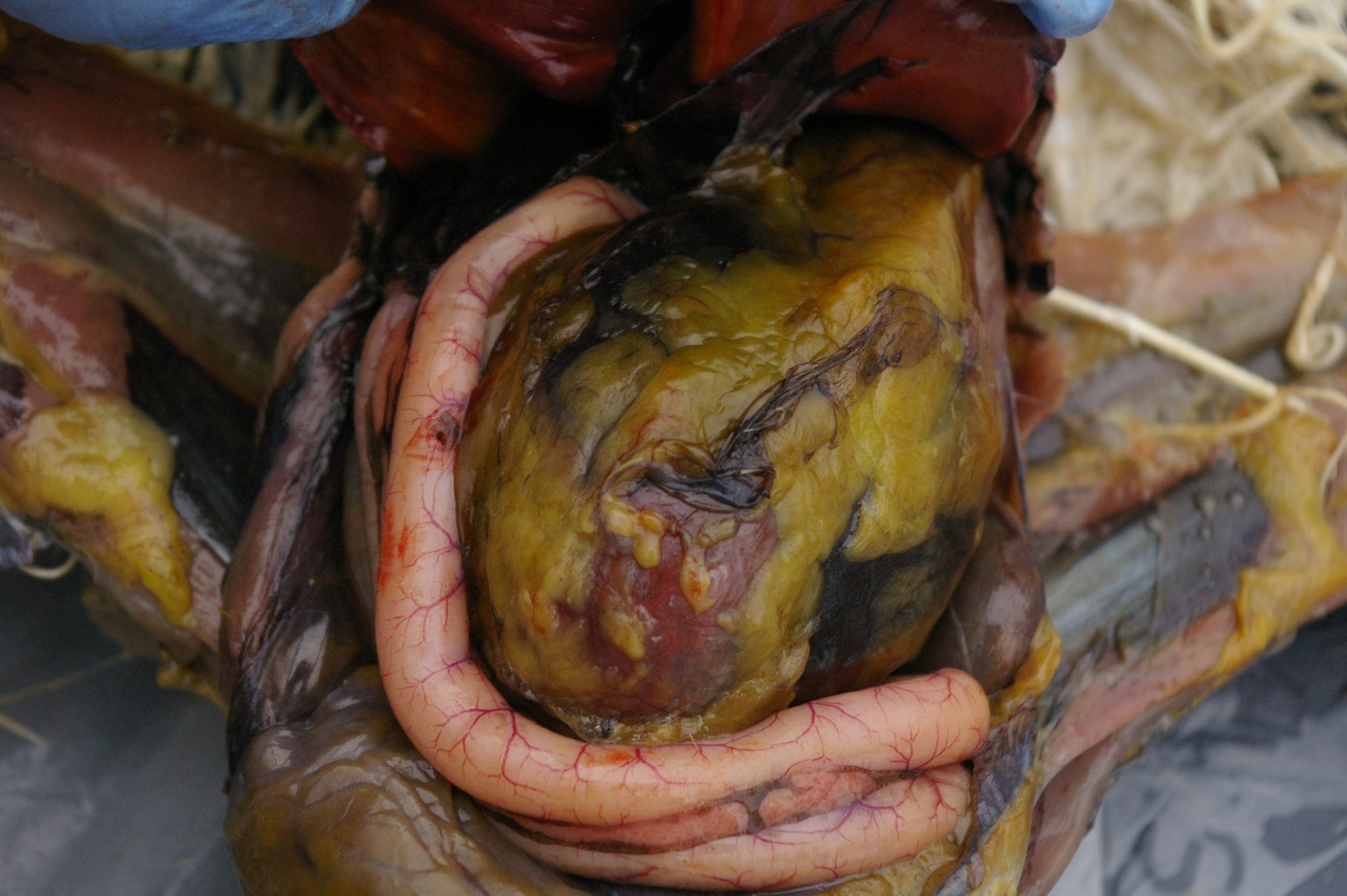 Cavity open. Large ball that's covered in fat deposits is the Gizzard. They are HUGE Pink is the Duodenum and pancreas