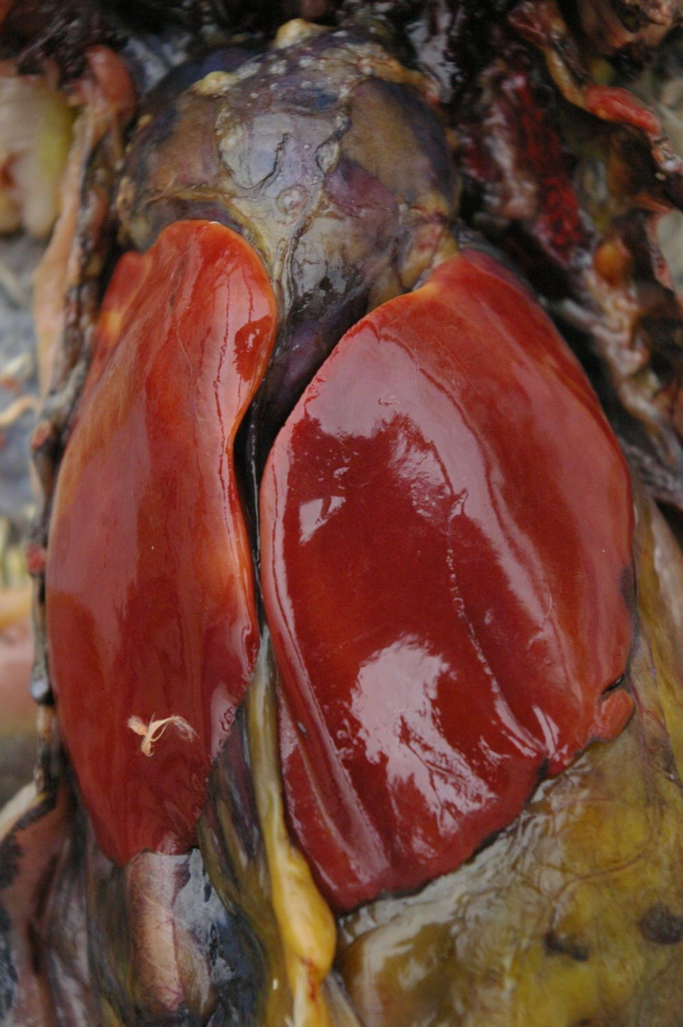 Heart at top of picture. Liver sits on top of it. This liver is pale and has yellow areas on it - that's not normal.