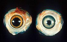 220px-Ocular_Marek's_disease.jpg