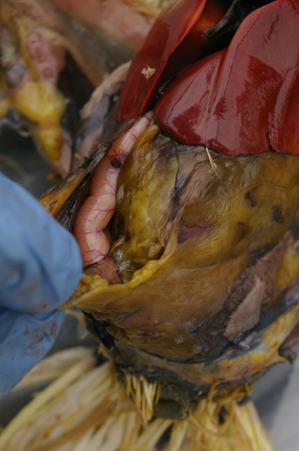 Next layer of body cavity opened. Bowel coming into view