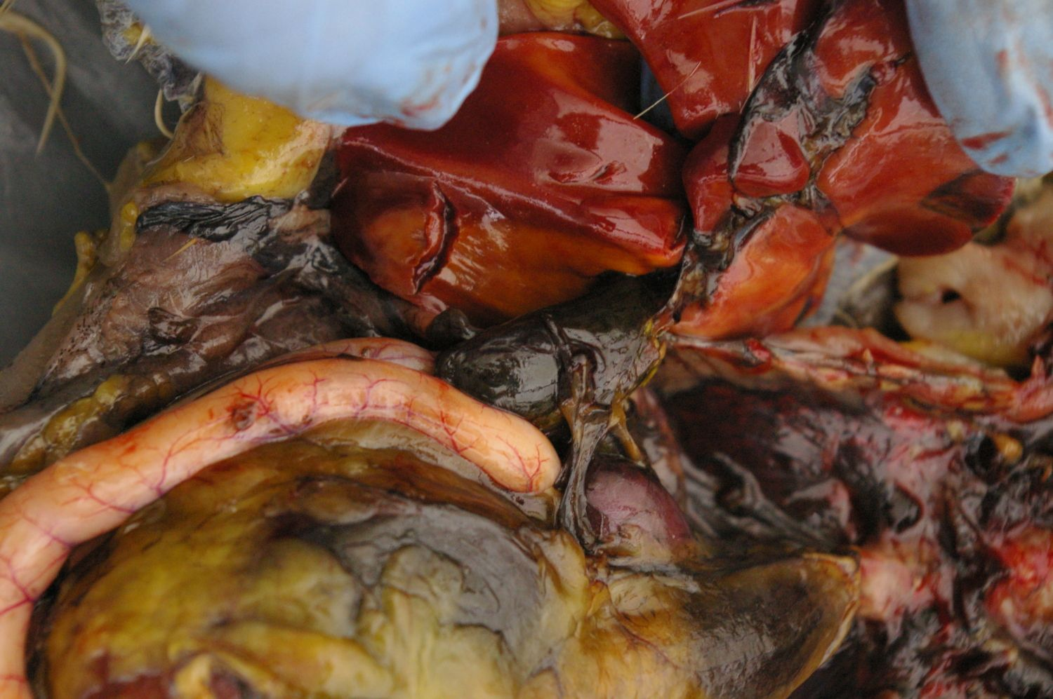 Black sac in the centre of the picture is the Gall Bladder. It secretes digestive juices