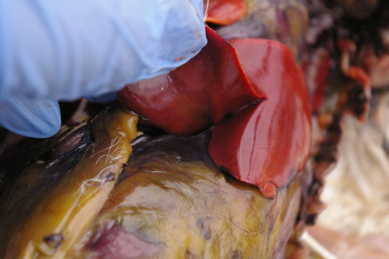 Liver has lobes